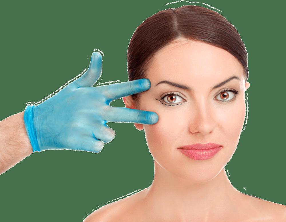 Plastische Chirurgie der oberen Augenlider vor und nach dem Abnehmen